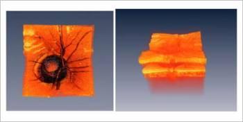 (Imágenes de la cabeza de un nervio óptico humano, a la izquierda de la superficie, y a la derecha tridimensionalmente.) (Foto: MIT Optics Group, J. Fujimoto)